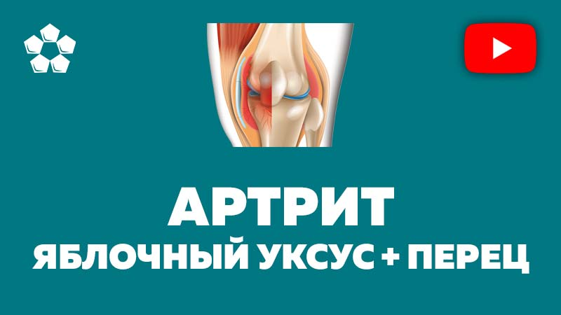 видео лечение артрита