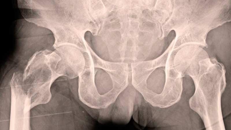 Рентгеновский снимок таза и тазобедренной кости